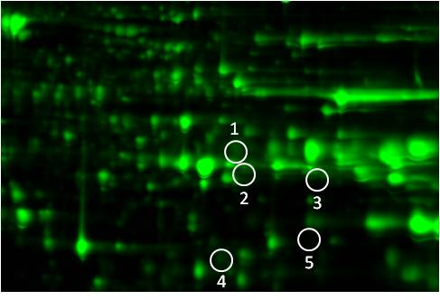 Phosphoproteomics study design A: protein image of Control sample
