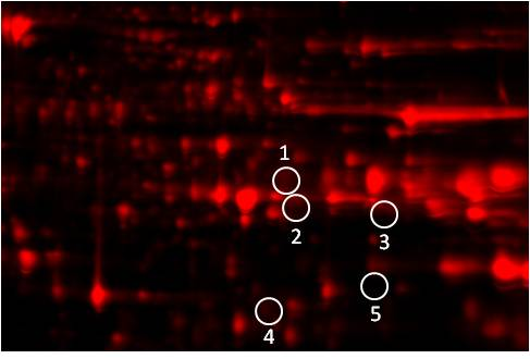 Phosphoproteomics study design A: protein image of Test sample
