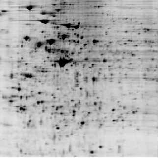 Analyze siRNA induced proteome change by by 2D DIGE protein array: black/white image of Control proteome