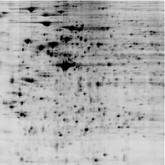 Analyze siRNA induced proteome change by by 2D DIGE protein array: black/white image of siRNA+ proteome