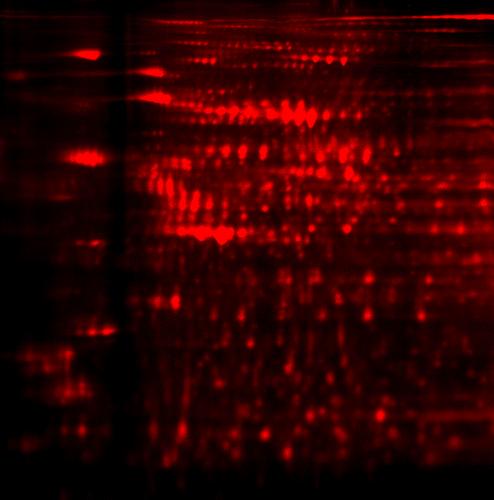2D DIGE protein array of large sample set: Test sample_1