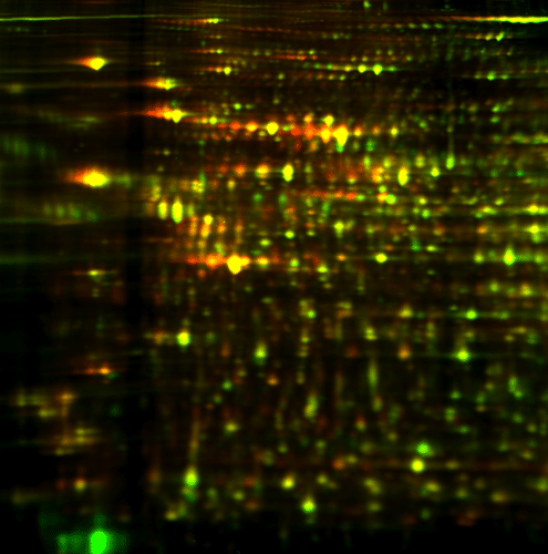 2D DIGE protein array of large sample set: overlay image WT_3/T_3