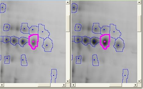 2D DIGE cross-gel data analysis for study design 1: Spot map showing the selected spot aligned on different gels