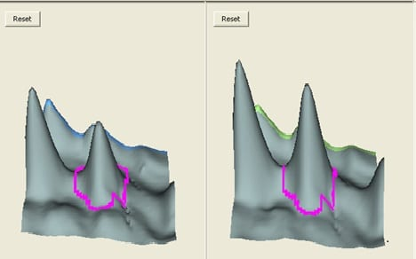 2D DIGE cross-gel data analysis for study design 1: 3D view of the selected spot on different gels