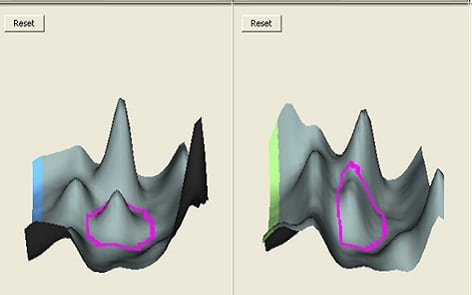 2D DIGE cross-gel data analysis for study design 3: 3D view of the selected spot on different gels