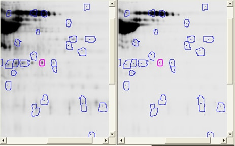 2D DIGE cross-gel data analysis for study design 4: Spot map showing the selected spot aligned on different gels