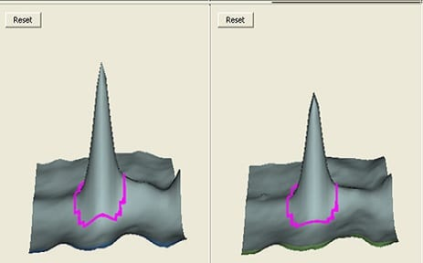 2D DIGE cross-gel data analysis for study design 4: 3D view of the selected spot on different gels