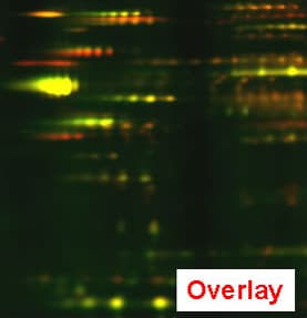Membrane proteomics: overlay image of S- and G2/M-phase membrane proteome