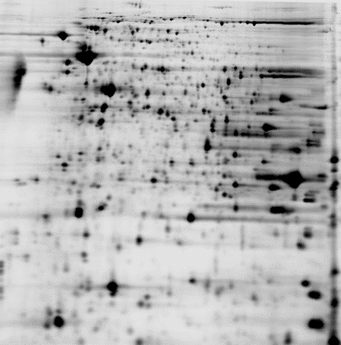 2D DIGE protein array of 2 samples: black/white image of control sample