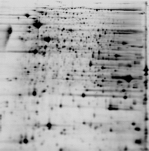 2D DIGE protein array of 2 samples: black/white image of test sample