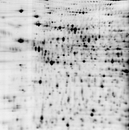 2D DIGE protein array of 3 samples: black/white image of control sample