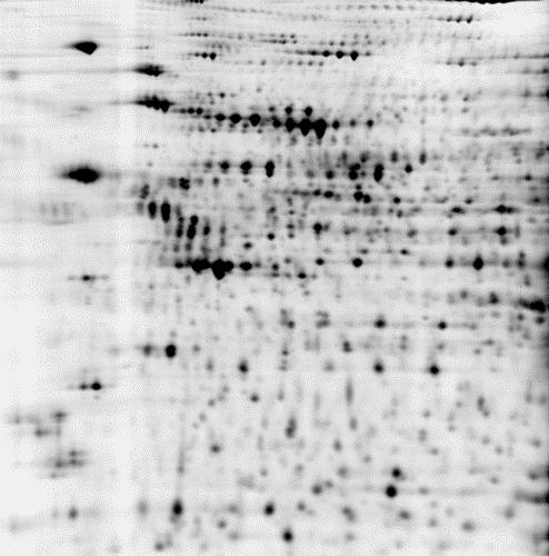 2D DIGE protein array of 3 samples: black/white image of test_1 sample