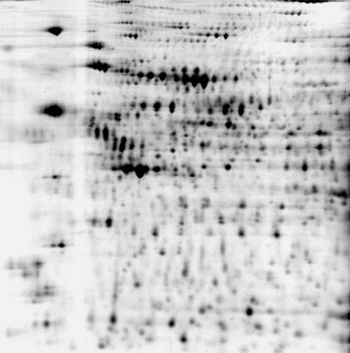 2D DIGE protein array of 3 samples: black/white image of test_2 sample