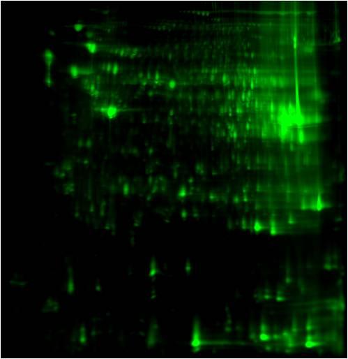 Anti-Succinyl lysine 2D Western Blot: Mouse Liver proteome 2D image